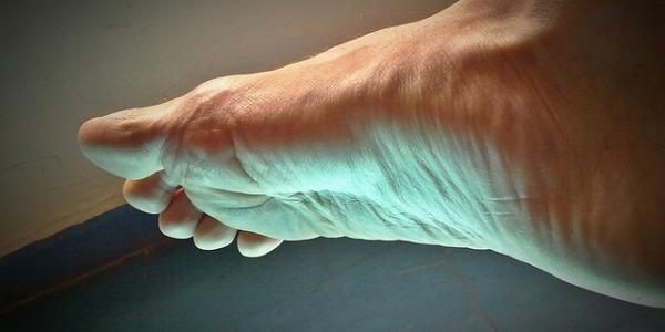 ¿Qué es el pie cavo? Síntomas, causas y tratamientos